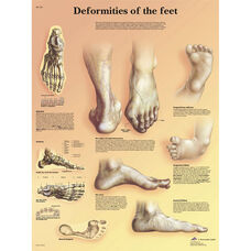 Deformities of the Feet Anatomical Laminated Chart - 20