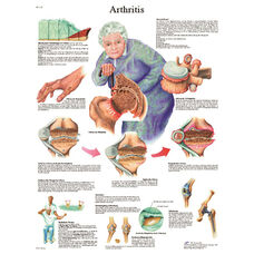 Arthritis Anatomical Paper Chart - 20