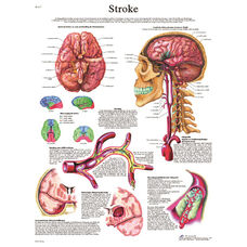 Stroke Anatomical Paper Chart - 20