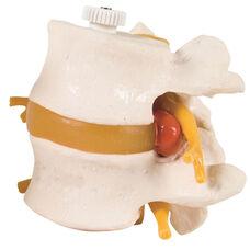 Anatomical Model - Flexible 2 Lumbar Vertebrae with Prolapsed Disc