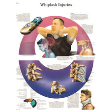 Whiplash Injuries Anatomical Paper Chart - 20