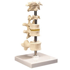 Anatomical Model - 6 Mounted Vertebrae on Mounted Base