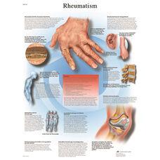 Rheumatic Diseases Anatomical Paper Chart - 20