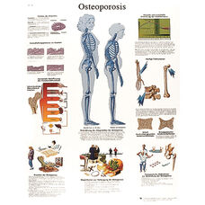 Osteoporosis Anatomical Paper Chart - 20